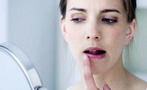 Прыщи в уголках губ, причины и лечение