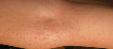 Аллергия на предплечье как сыпь