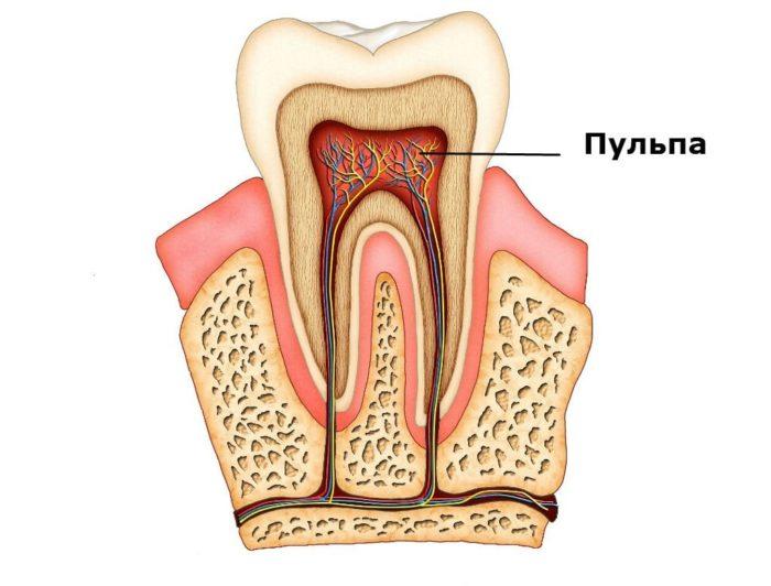 Удаление пульпы зуба