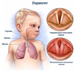 Что такое острый фаринголарингит у взрослых, его симптомы и лечение