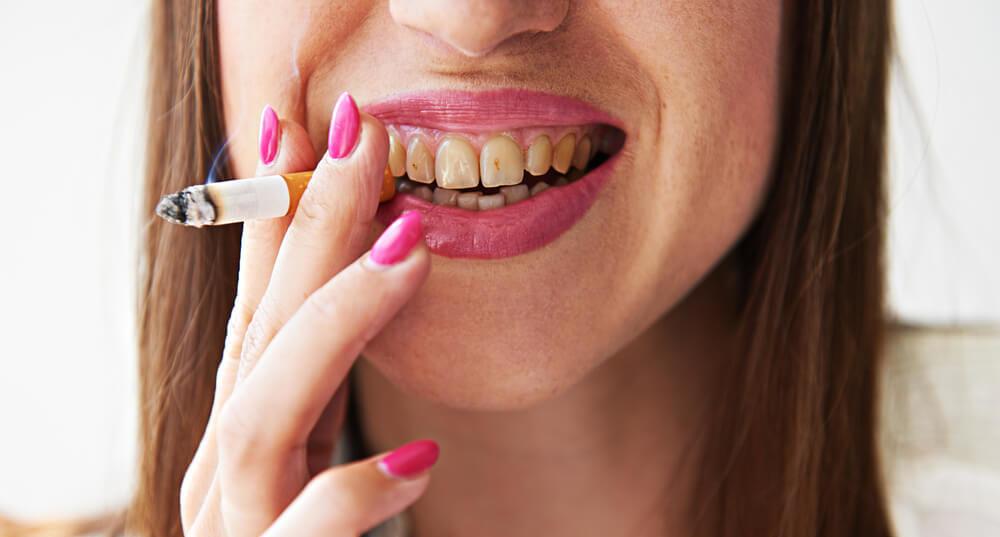 Как курение влияет на зубы, влияние и последствия