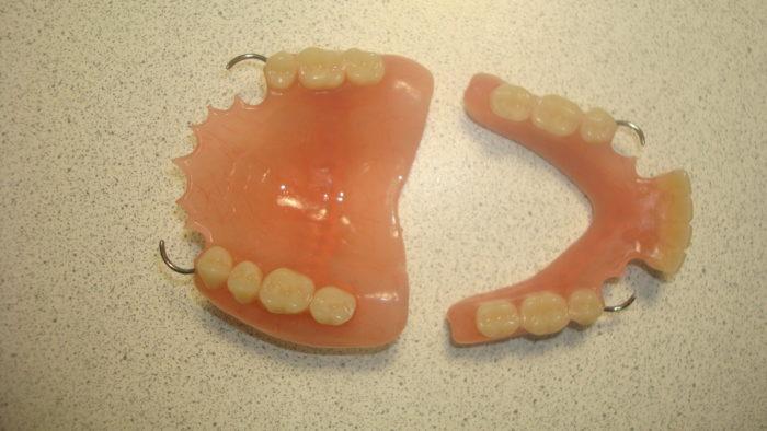 Съемные протезы для зубов: какие лучше