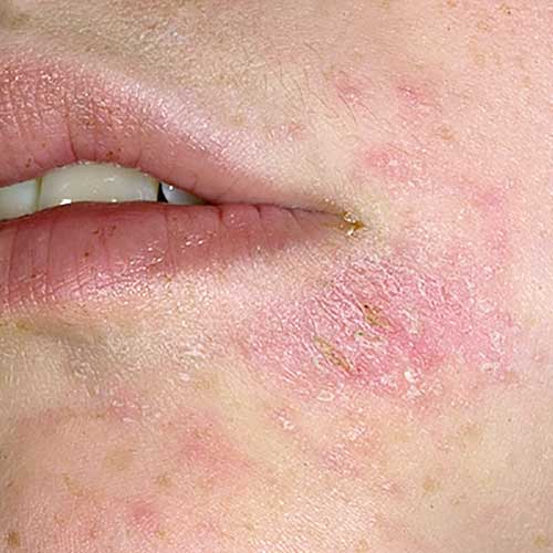 Аллергия - прыщи и шелушение