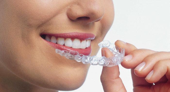 Капа для зубов