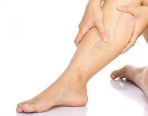 варикоз вены на ногах