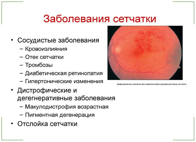 zabolevaniya_setchatki