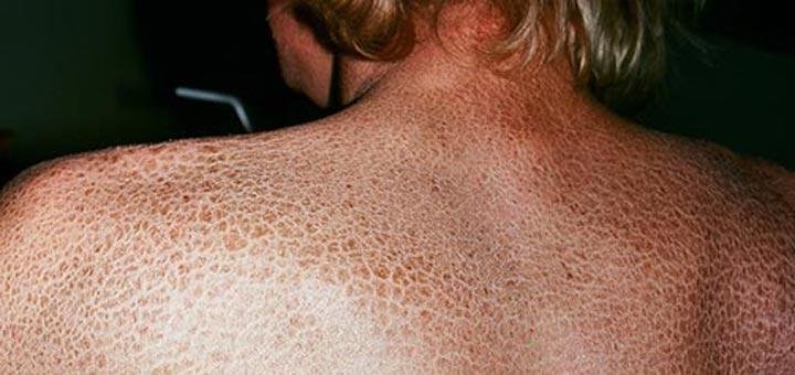 Врачами доказано – эти болезни кожи неизлечимы