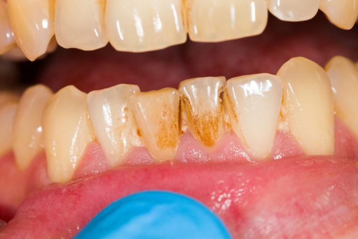 Как избавиться от чёрного налета на зубах у взрослых и детей