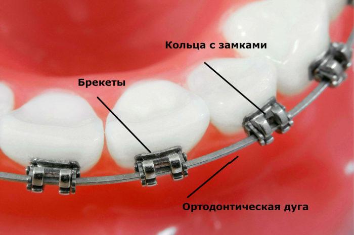 Брекет-система: конструкция, разновидности, сколько длится лечение
