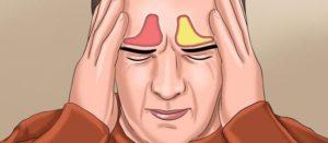 Что такое острый фронтит, его симптомы и лечение