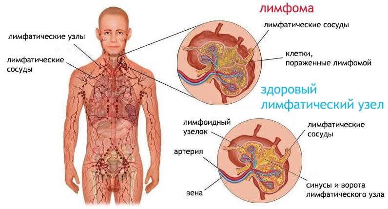 лимфома