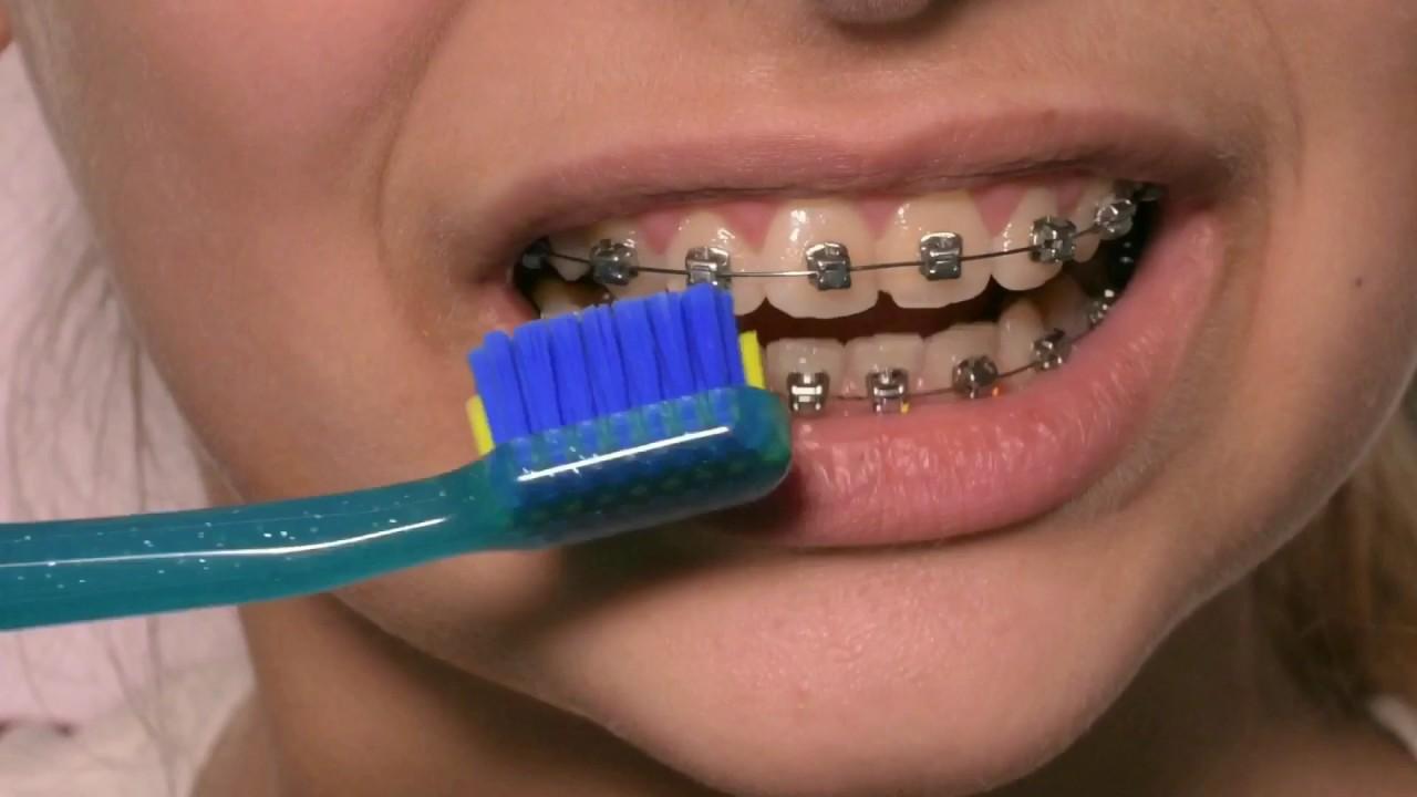 Как выбрать зубную щетку для брекетов?