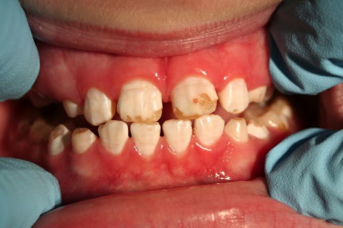 Что такое гипоплазия эмали? Особенности развития заболевания