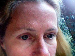 Шелушение на коже - дерматит