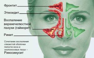 Отличие фронтита от других видов синусита