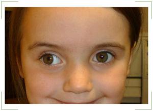 Гимнастика для глаз при косоглазии