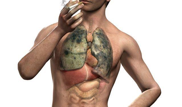Бронхит и курение
