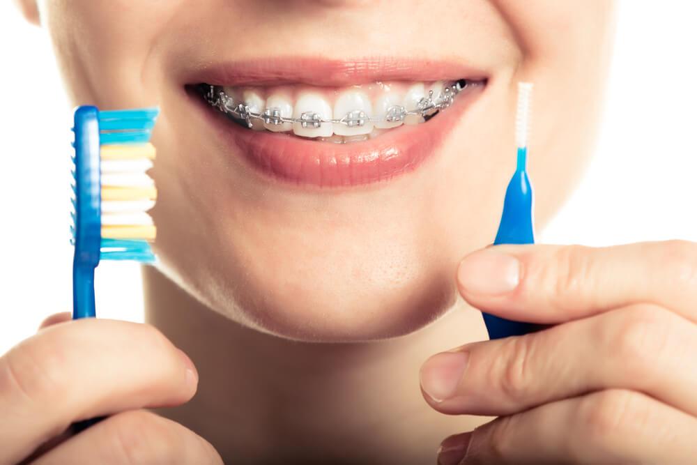 Можно ли целоваться с брекетами на зубах?