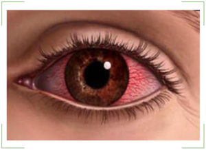 Ожог роговицы глаза