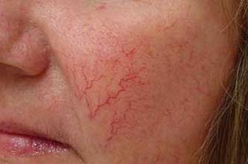 Каким распространенным заболеваниям кожи мы подвержены?