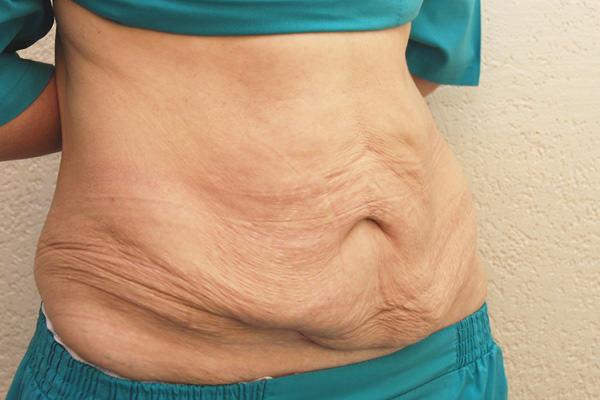 обвисшая кожа после похудения, растяжки