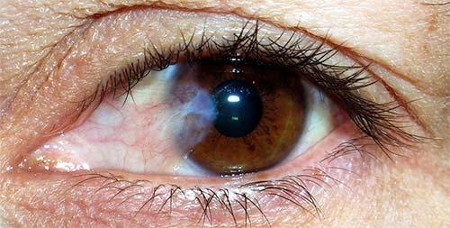 Птреригиум глаза