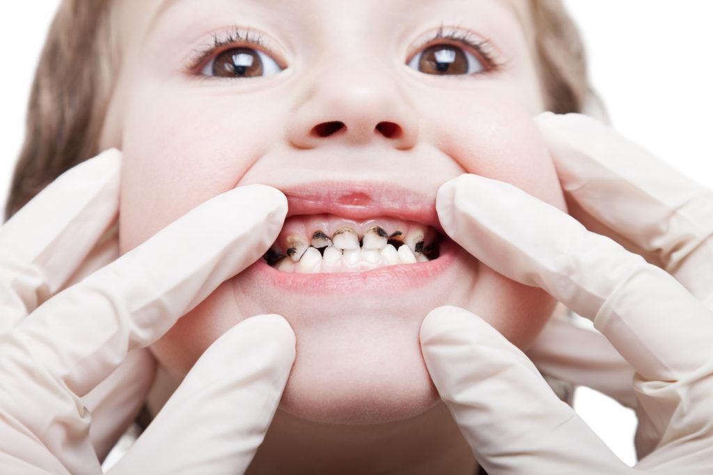 Скол молочного зуба