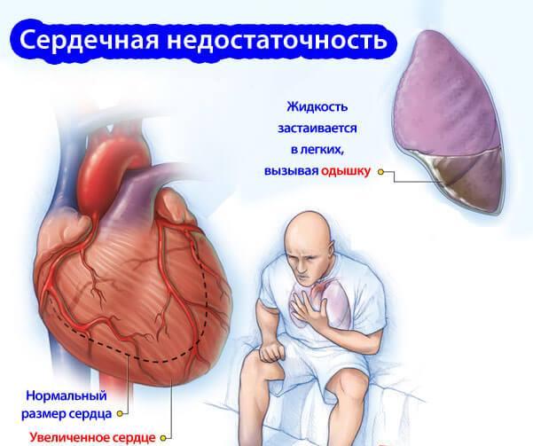 кардиоотек