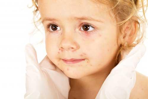 Прыщи вокруг рта у ребенка, причины и что делать