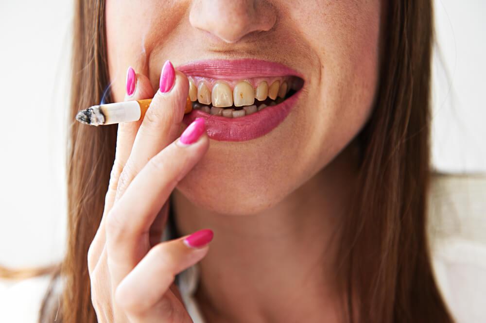 Почему желтеют зубы и как с этим бороться?