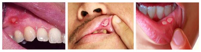 Чем вылечить язвы во рту (афтозный стоматит)?