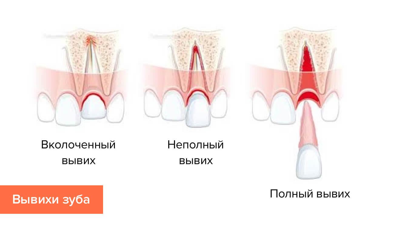 вывих зуба