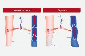 варикозное расширение вен нижних конечностей болезнь лечение симптомы