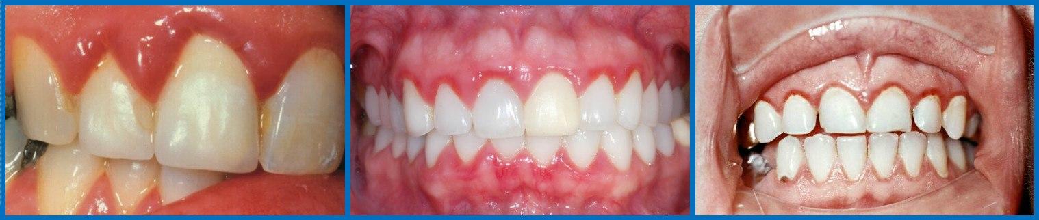 Зубные капли