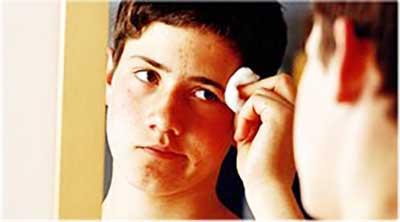 Как важно подростку обращаться к врачу если появились прыщи