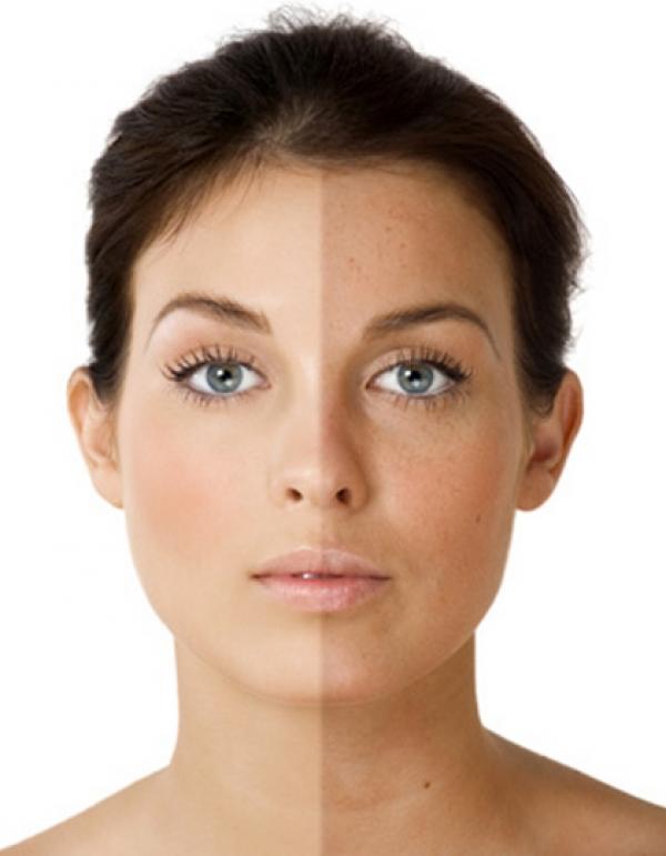 Осветление кожи лица натуральными продуктами