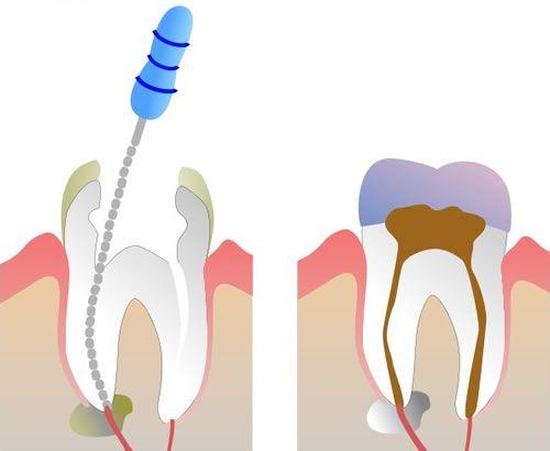 Как самостоятельно вытащить мышьяк из зуба