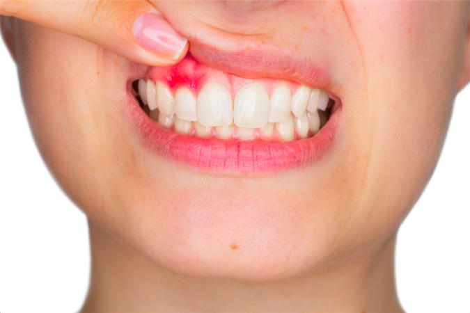 Почему происходит отторжение импланта зуба?