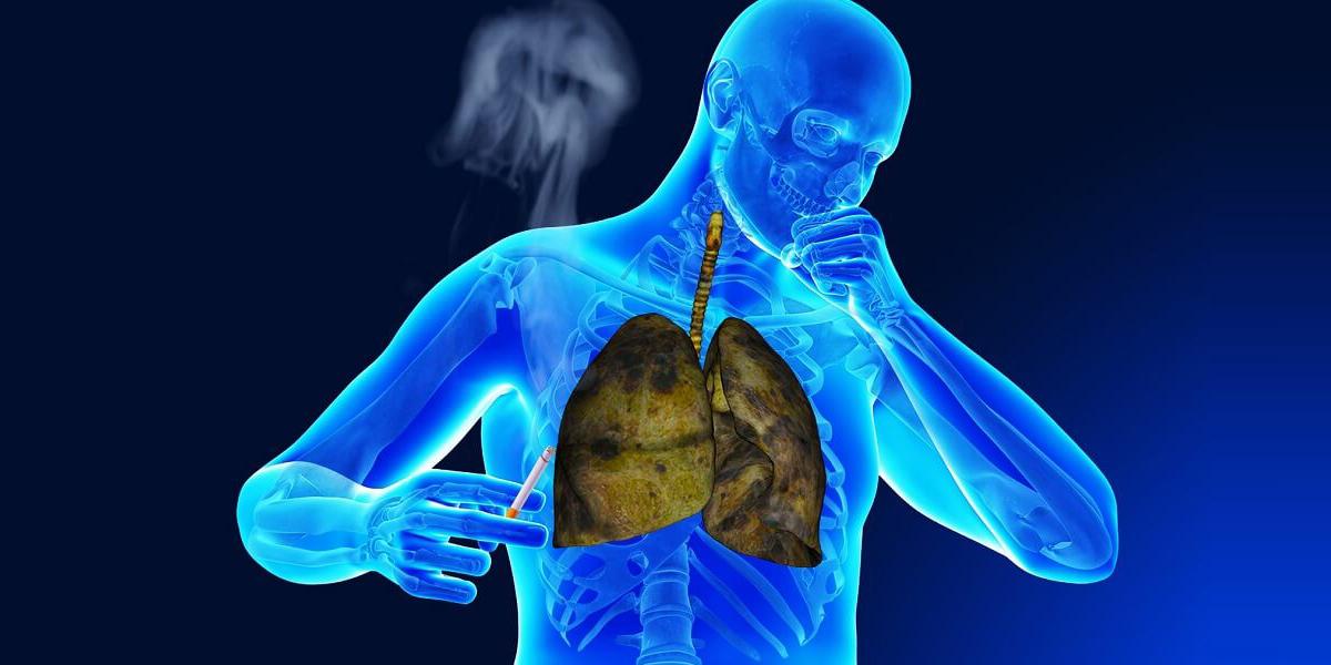 Передозировка никотином: признаки и симптомы никотинового отравления острой формы, первая помощь при интоксикации человека и лечение