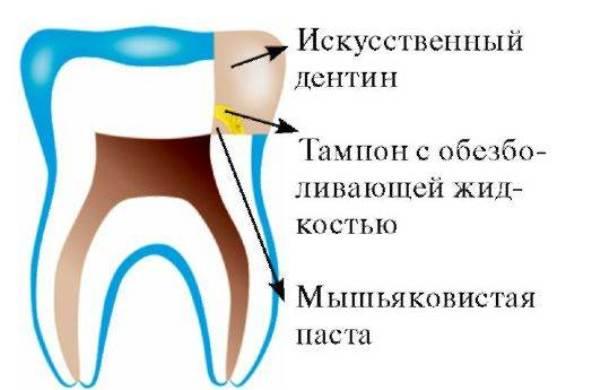 как установить мышьяк в зуб