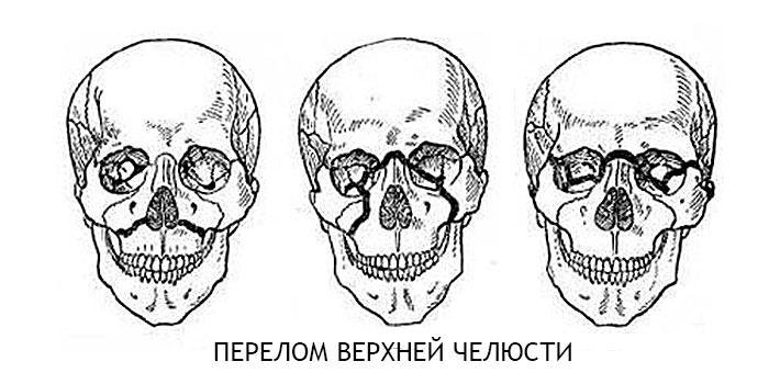челюсть