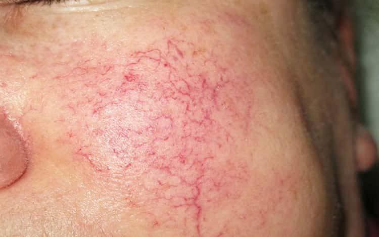 Появился купероз на лице и как с ним бороться? советы врачей