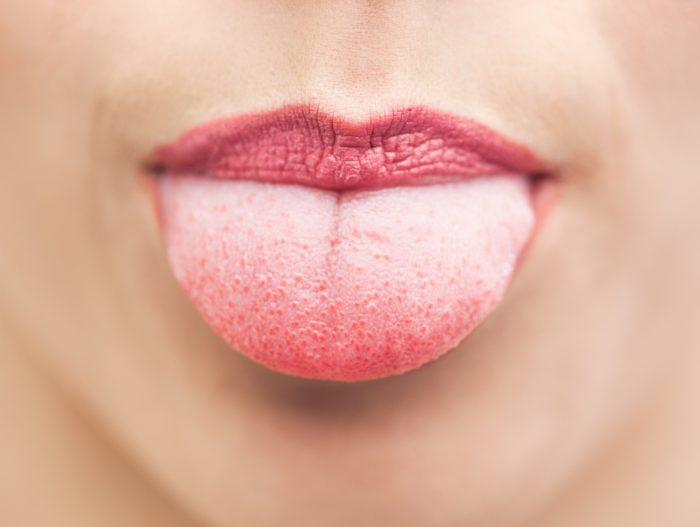 Какой врач лечит язык