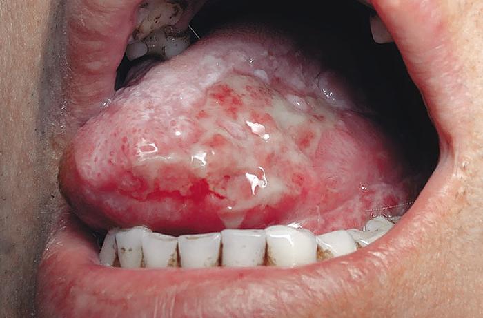 Лейкоплакия полости рта: причины, симптомы, формы патологии