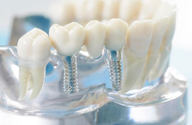 Несъемные зубные протезы