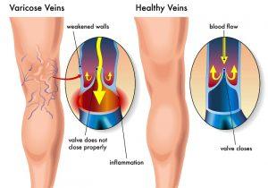 варикоз ноги венозное расширение