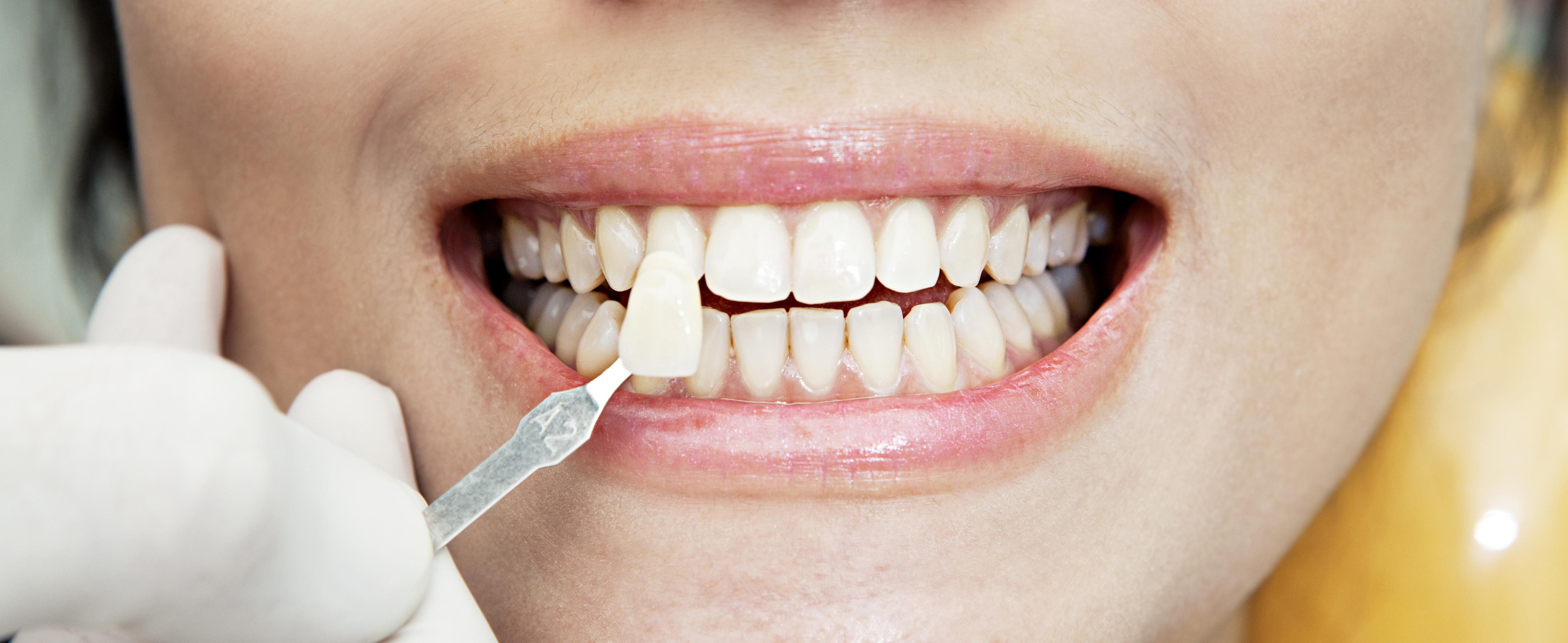Отбеливание мертвого зуба