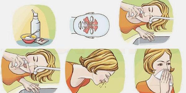 промывание носа физраствором