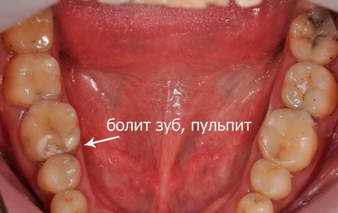 Что делать, если запломбировали зуб, а он болит при жевании?