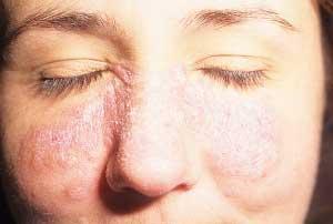 Внутренние причины прыщей и шелушения кожи